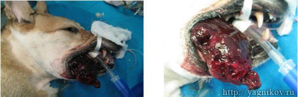 Макрофото. Меланома в области правой ветви нижней челюсти.