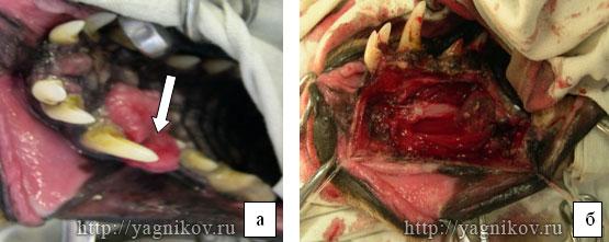 Амелобластома в области нёбной кости с прорастанием в кость