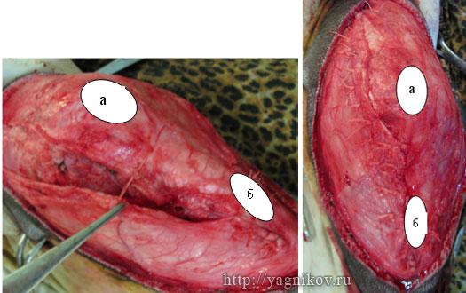 Ушивание капсулы коленного сустава «внахлест» между коленной чашкой и бугристостью большеберцовой кости