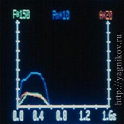 Одногорбый график реакции опоры после выполнения резекционной артропластики ТБС