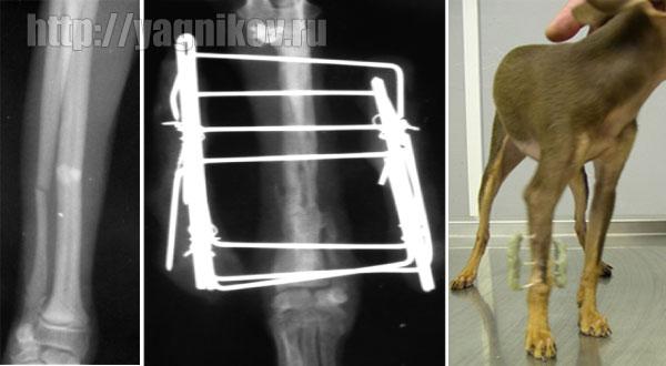 Внеочаговый остеосинтез двусторонним одноплоскостным фиксатором. костей правого предплечья