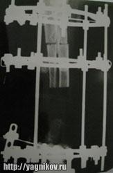сегментарная резекция опухоли кости с остеотомией костей предплечья