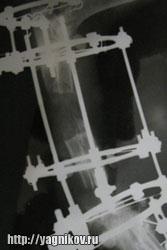 Дистракция остеотомированного сегмента с формированием регенерата кости