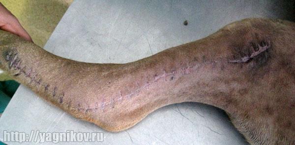 Заживление операционной раны на 16 сутки после операции