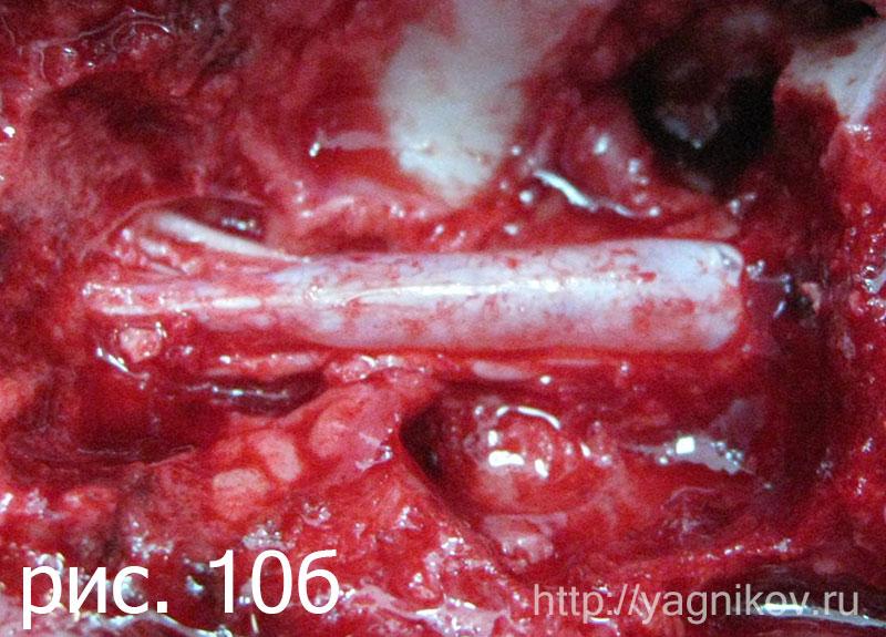 Этап операции после удаления гипертрофированной желтой связки. Спинной мозг выбухает из позвоночного канала.